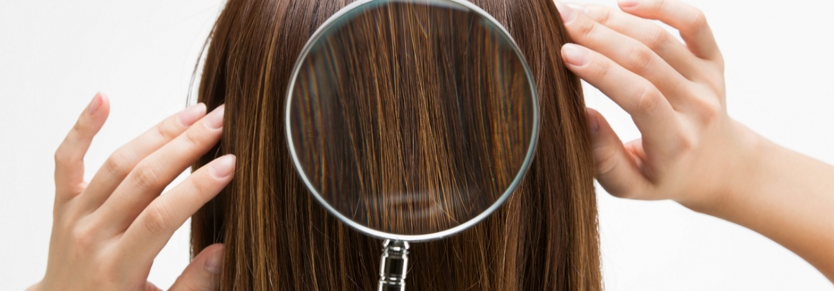 test calvizie alopecia androgenetica