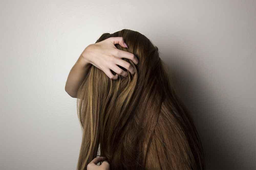definizione di alopecia androgenetica