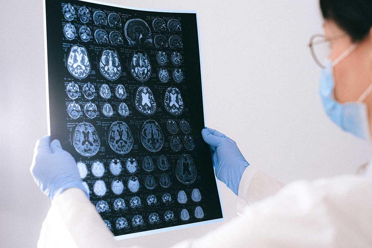 alzheimer genetica